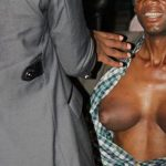 Zimbabwean man develops breasts bigger than those of an average woman